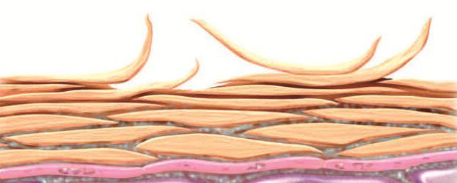 Hornschicht der Haut